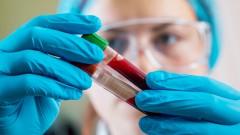 בדיקות דם, מעבדה (צילום: אילוסטרציה)