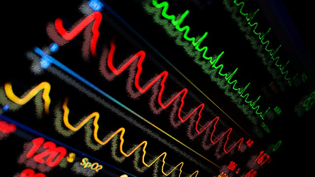 מוניטור לב, אשפוז (צילום: אילוסטרציה)