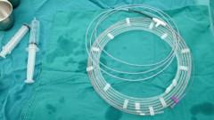 פרוצדורת ERCP (צילום: אילוסטרציה)