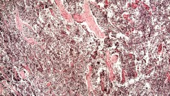shutterstock) Small-cell lung cancer of a human)