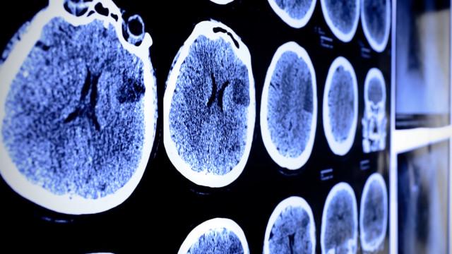 תצלום CT של המוח (צילום: אילוסטרציה)