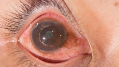 Uveitis, אובאיטיס, מחלת עיניים (צילום: אילוסטרציה)