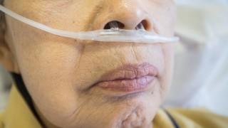 מחלת ריאות, COPD, צינור חמצן (צילום: אילוסטרציה)