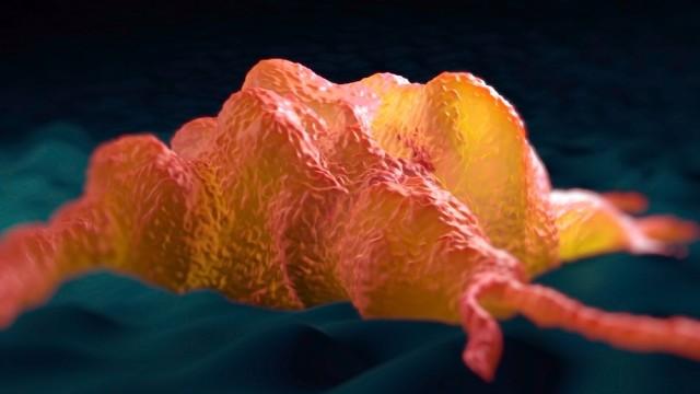 תא מאקרופאג (הדמיית אילוסטרציה)