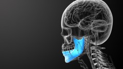 shutterstock) jaw bone)