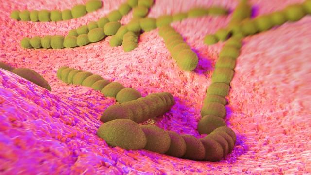 חיידק streptococcus pneumoniae, דלקת ריאות (הדמיית אילוסטרציה)