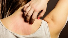 (young woman scratching her itchy back (shutterstock