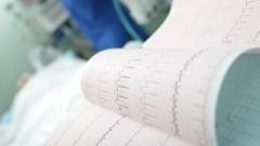 """אירועי לב, בדיקת אק""""ג (צילום: אילוסטרציה)"""
