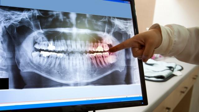 (teeth x-ray (shutterstock