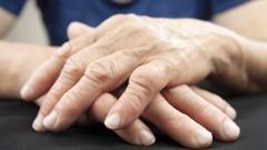 דלקת פרקים שגרונית, ידיים (צילום: אילוסטרציה)