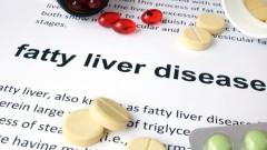 (Fatty Liver Disease (shutterstock