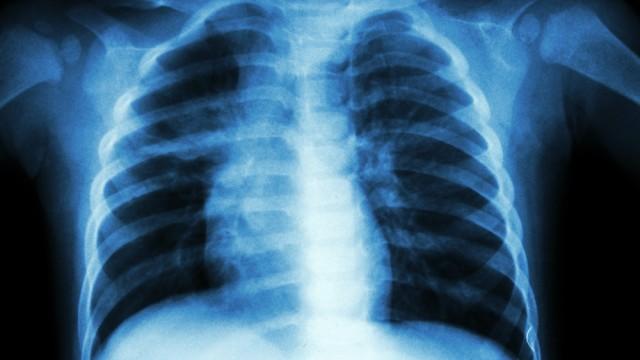 זיהומי ריאות בילדים (צילום: אילוסטרציה)