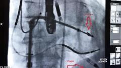 """תיקון המסתם המיטרלי באמצעות אטב חדשני (MITRACLIP) המאפשר הצמדת עלי המסתם לקראת תיקונו ובעזרת השתלה של משאבת לב חדשנית (IMPELLA) המאפשרת הזרמת דם גם כשפעילות הלב ירודה (מקור: """"שערי צדק"""")"""