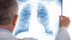 מחלת ריאות, רופא בוחן צילום רנטגן (צילום: אילוסטרציה)