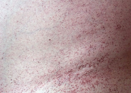 אנגיוקרטומה בחולי מחלת פברי (מקור: ויקיפדיה)