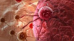 סרטן (אילוסטרציה)