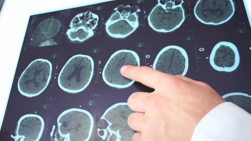 טרשת נפוצה ו-MRI (צילום: אילוסטרציה)