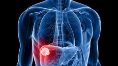סרטן כבד (אילוסטרציה)