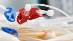 מכשיר דיאליזה, כשל כליות (צילום: אילוסטרציה)